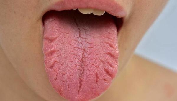 Трещины на языке связаны с заболеваниями крови и нарушениями в работе эндокринной системы